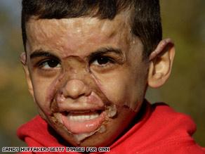 Little Iraqi boy helped American soldier